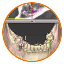 Dental Implant & Computer guided Implant treatment
