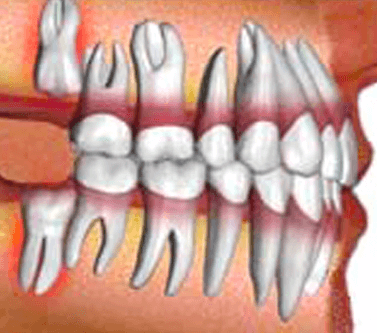 Dental Surgery  (Wisdom tooth,Bone graft)